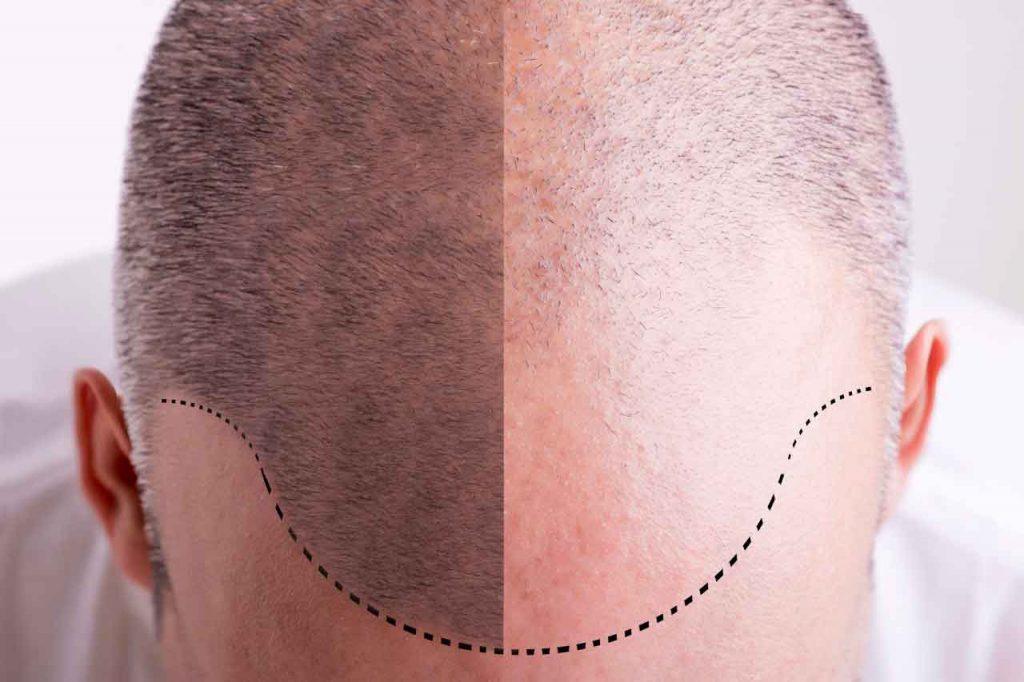 Tricopigmentazione costo